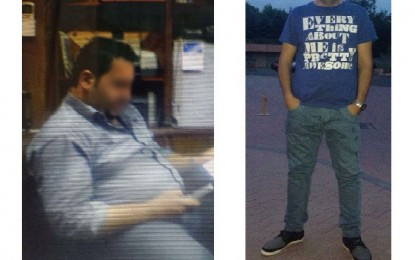 Gastric Band Pictures