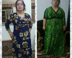 گالری تصاویر نمونه جراحی های دکتر هاشم زاده ( سری هفتم )