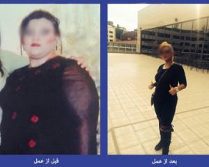 گالری تصاویر نمونه جراحی های دکتر هاشم زاده ( سری پنجم)