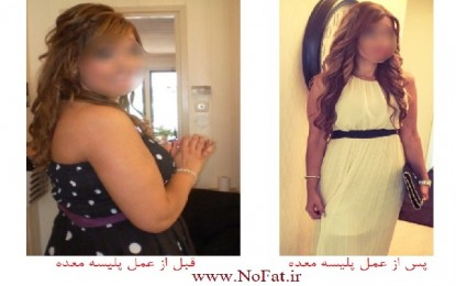 عکس/ دختری که در مدتی کوتاه، 48 کیلوگرم از وزن خود را کم کرد