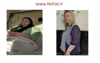50 تا 65 کیلوگرم اضافه وزن دارم، با چه روشی به وزن نرمال برسم؟