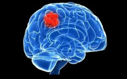 تومور مغزی در کمین افراد چاق