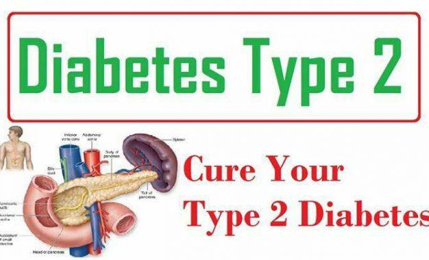 چاقی مفرط عامل اصلی سندرم متابولیک