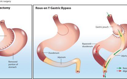 عمل بای پس معده برای افراد با وزن بالا مبتلا به دیابت نوع 2