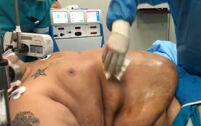 جراحی اسلیو ساسی بیمار ۱۹۰ کیلویی